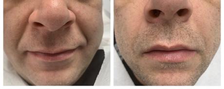 Wypełnienie kwasem bruzd nosowo-wargowych